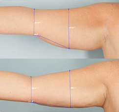 Laser Assisted Lipolysis